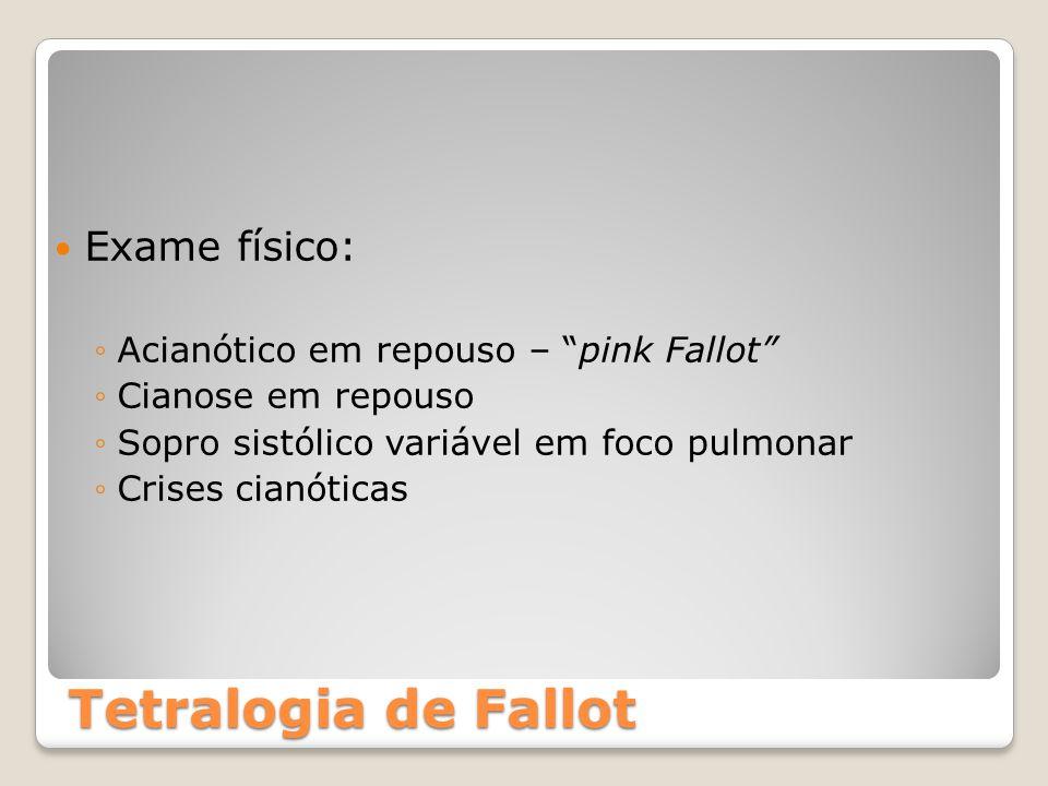 Tetralogia de Fallot Exame físico: