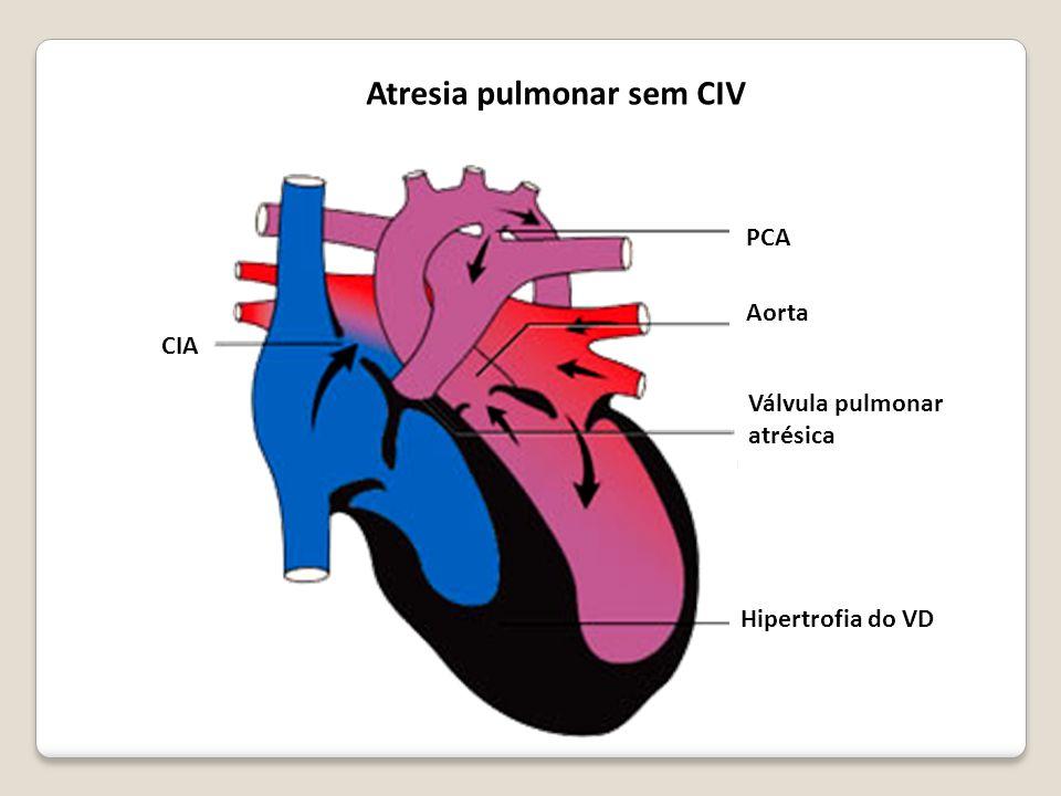 Atresia pulmonar sem CIV