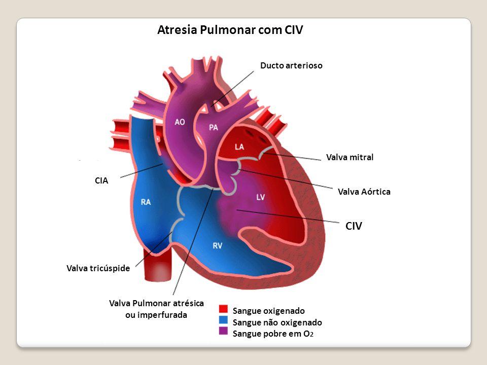 Valva Pulmonar atrésica ou imperfurada Atresia Pulmonar com CIV