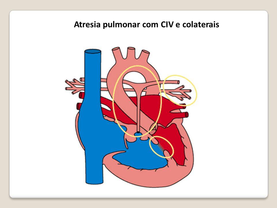 Atresia pulmonar com CIV e colaterais