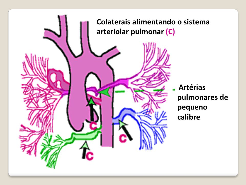 Colaterais alimentando o sistema arteriolar pulmonar (C)