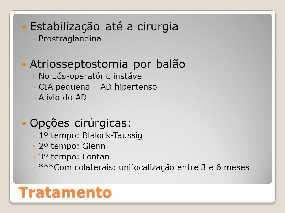 Tratamento Estabilização até a cirurgia Atriosseptostomia por balão