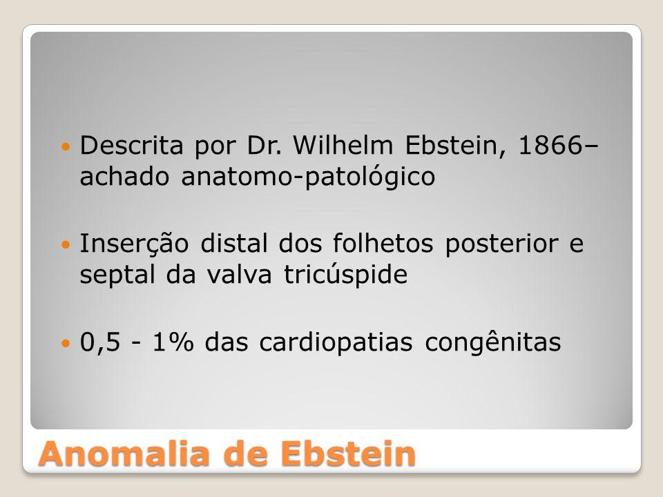 Descrita por Dr. Wilhelm Ebstein, 1866– achado anatomo-patológico