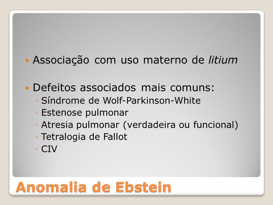 Anomalia de Ebstein Associação com uso materno de litium
