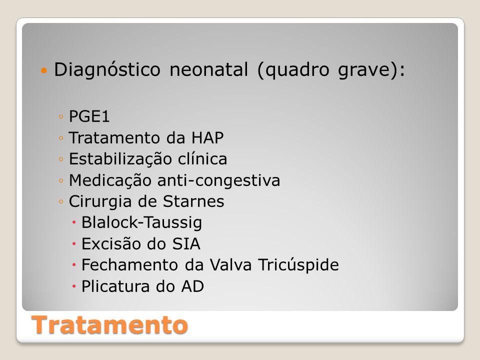 Tratamento Diagnóstico neonatal (quadro grave): PGE1 Tratamento da HAP
