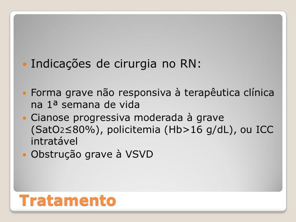 Tratamento Indicações de cirurgia no RN: