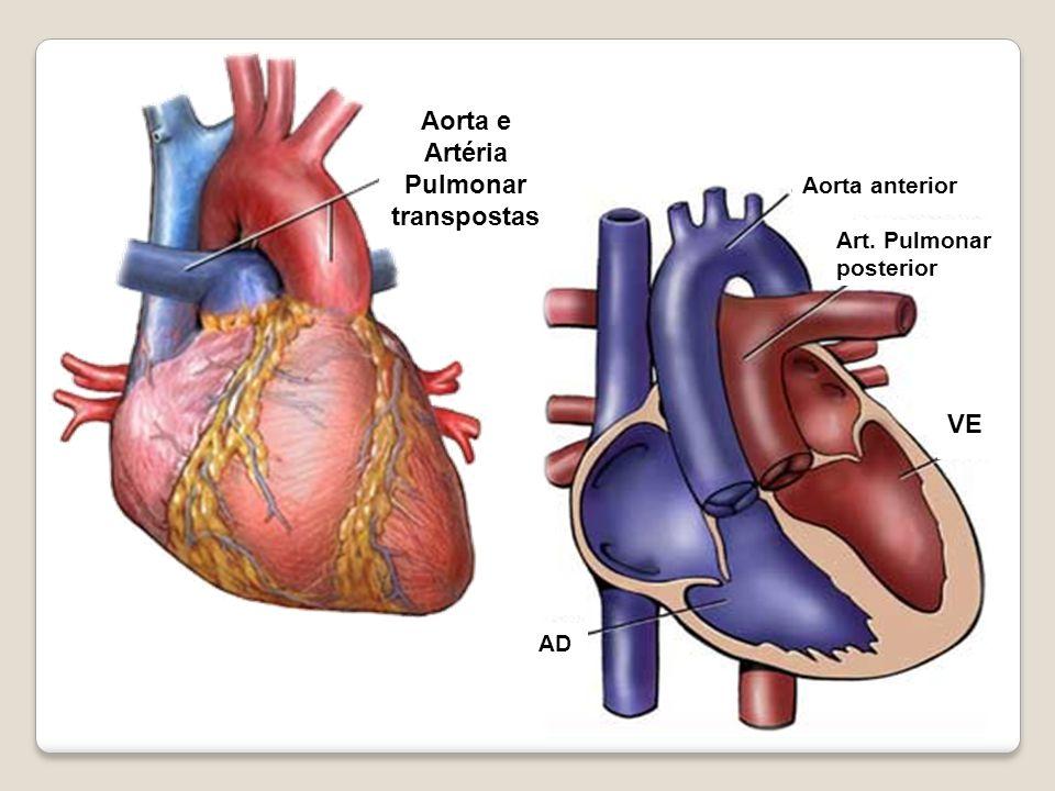 Aorta e Artéria Pulmonar transpostas