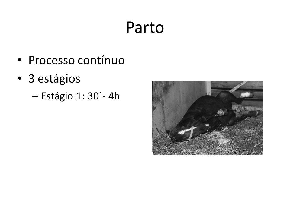 Parto Processo contínuo 3 estágios Estágio 1: 30´- 4h