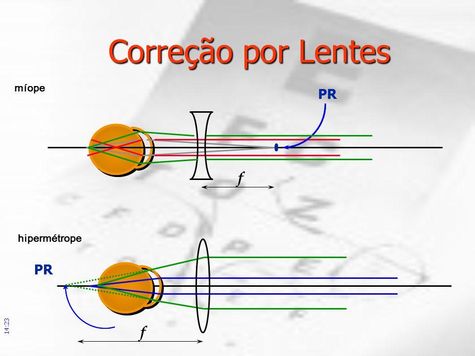 Correção por Lentes míope. PR. f. PR. correção por lentes coincidentes com o ponto remoto. hipermétrope.