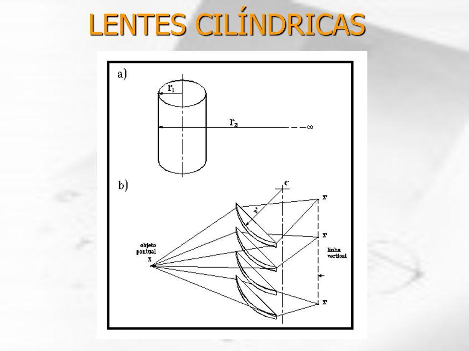 LENTES CILÍNDRICAS