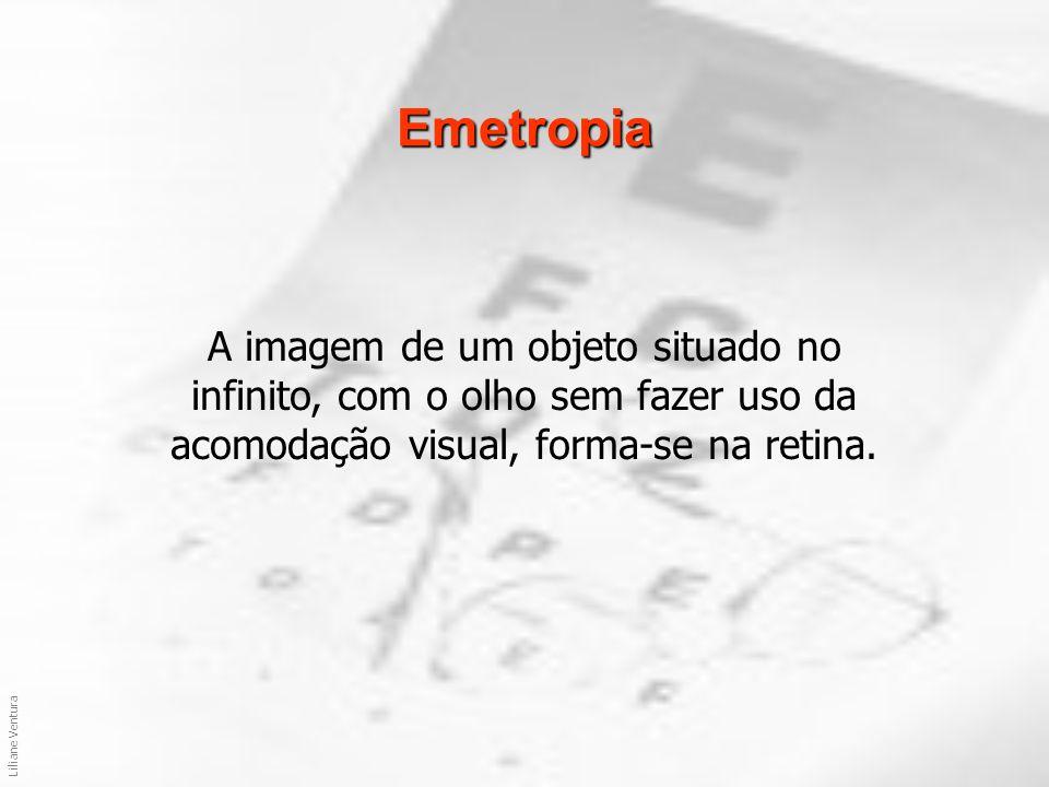 Emetropia A imagem de um objeto situado no infinito, com o olho sem fazer uso da acomodação visual, forma-se na retina.