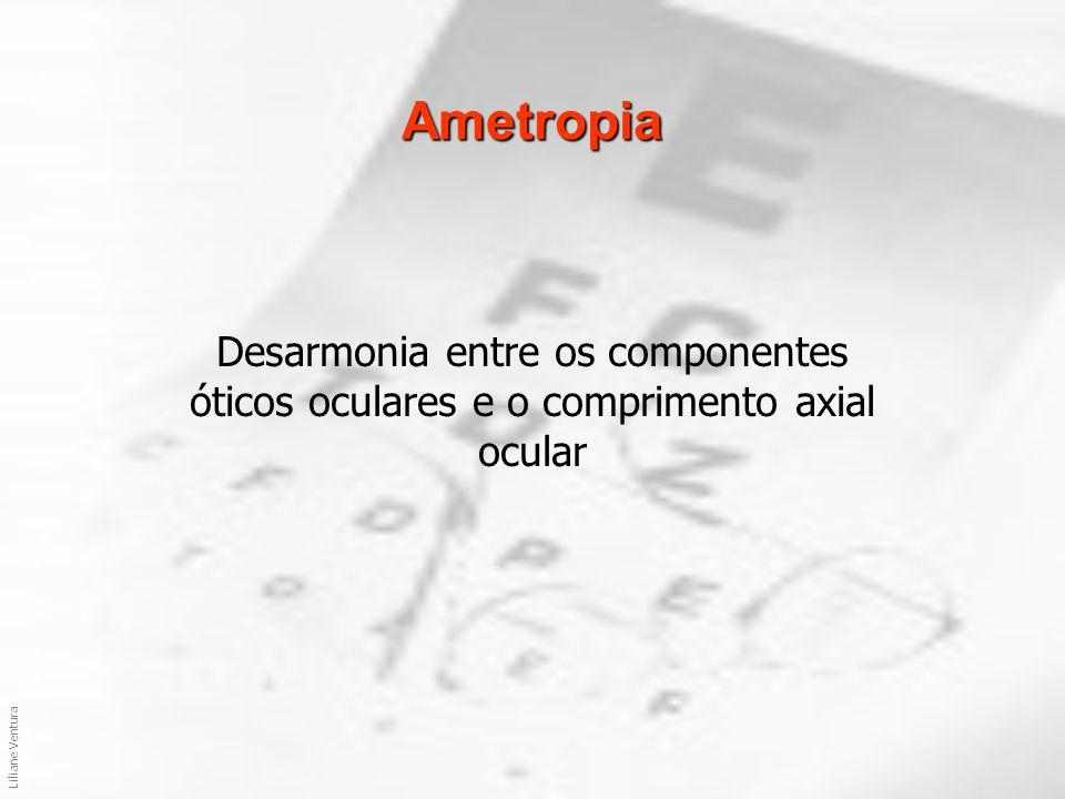 Ametropia Desarmonia entre os componentes óticos oculares e o comprimento axial ocular.