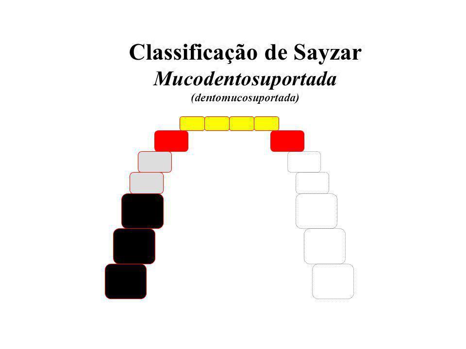 Classificação de Sayzar (dentomucosuportada)