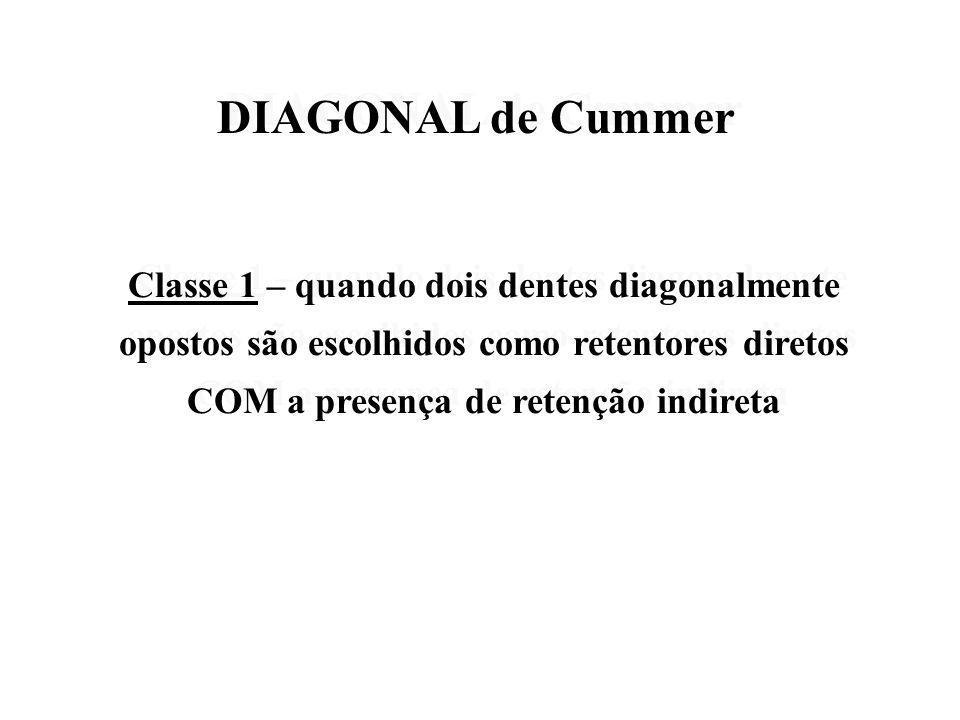 DIAGONAL de Cummer Classe 1 – quando dois dentes diagonalmente opostos são escolhidos como retentores diretos COM a presença de retenção indireta.