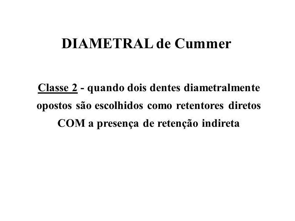 DIAMETRAL de Cummer Classe 2 - quando dois dentes diametralmente opostos são escolhidos como retentores diretos COM a presença de retenção indireta.