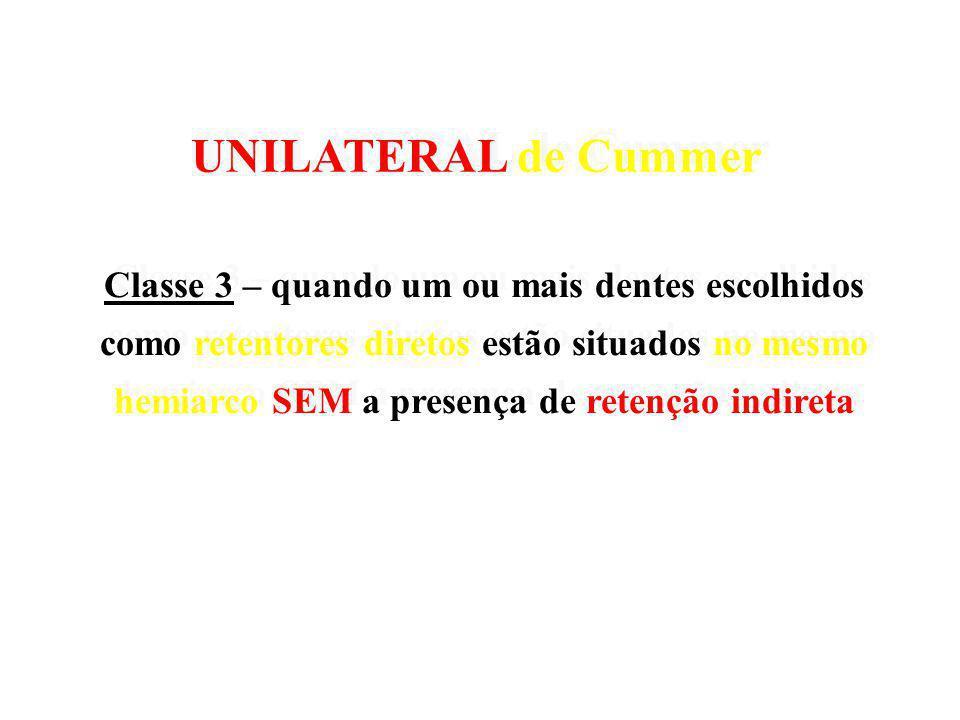 UNILATERAL de Cummer