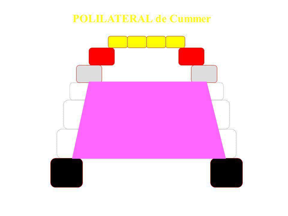 POLILATERAL de Cummer