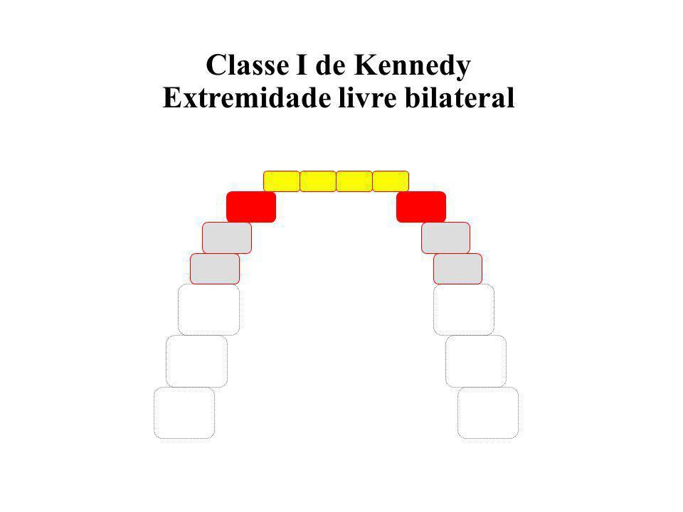 Extremidade livre bilateral
