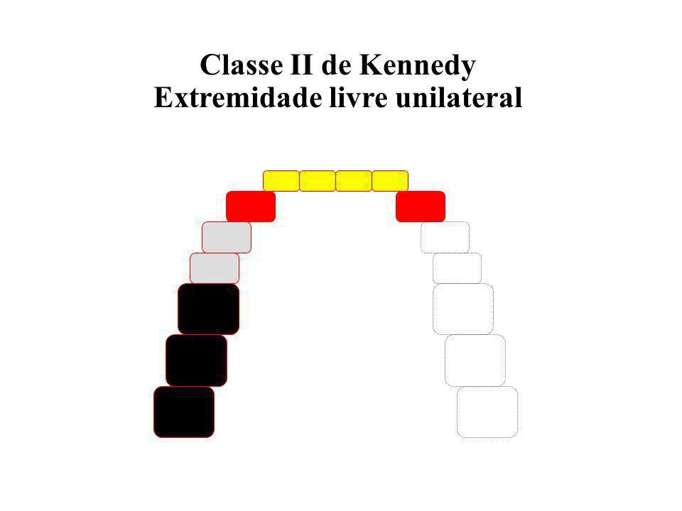 Extremidade livre unilateral