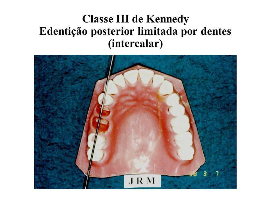 Edentição posterior limitada por dentes (intercalar)