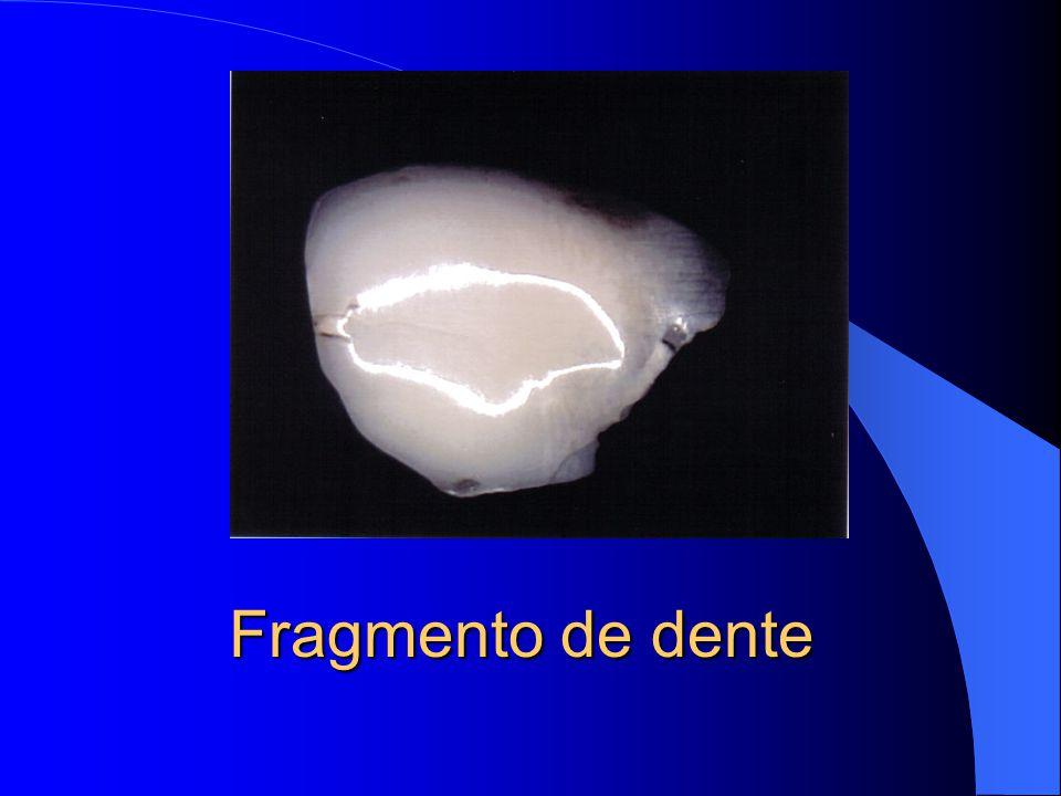 Fragmento de dente