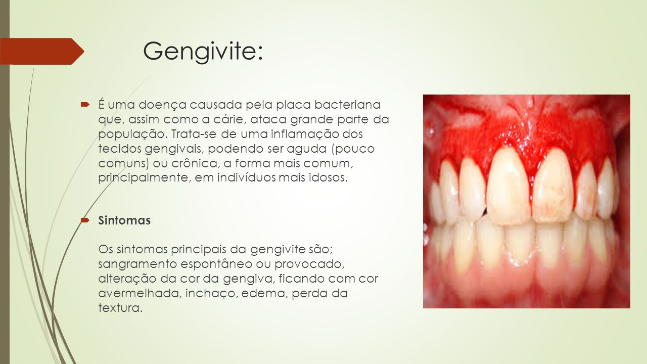 Gengivite: