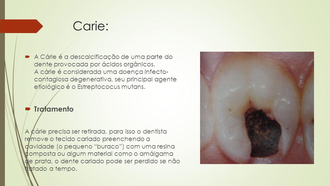 Carie: