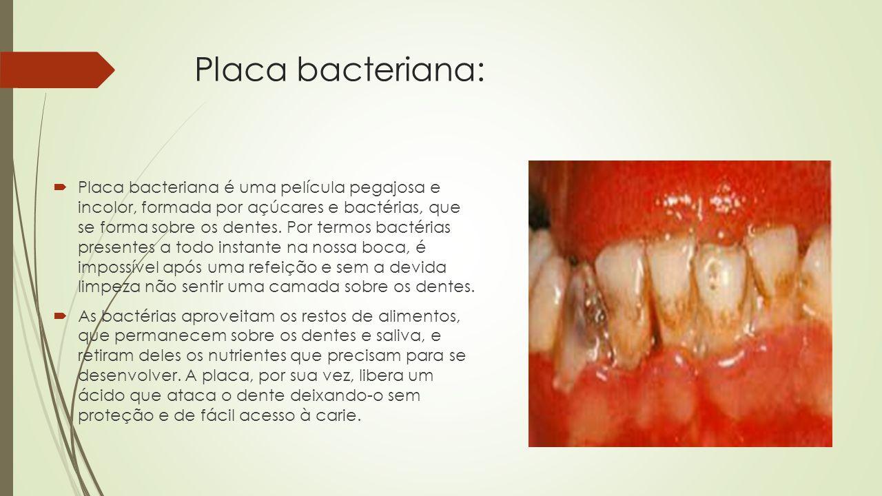 Placa bacteriana: