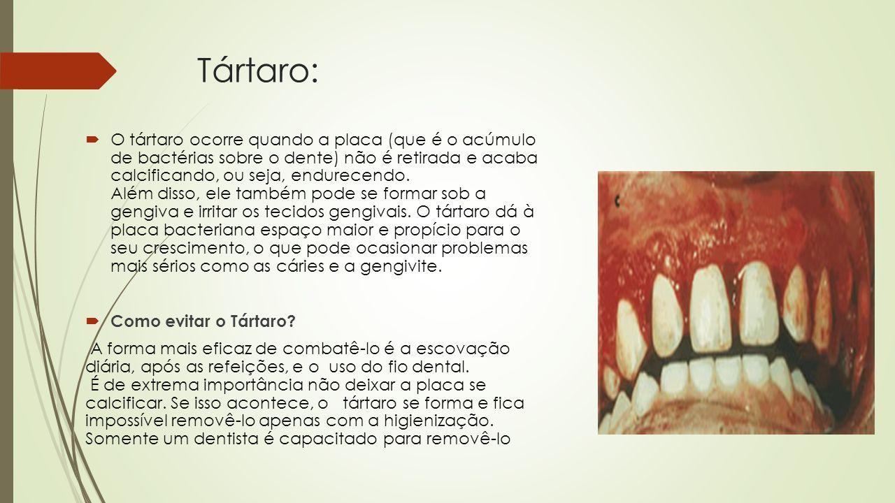 Tártaro: