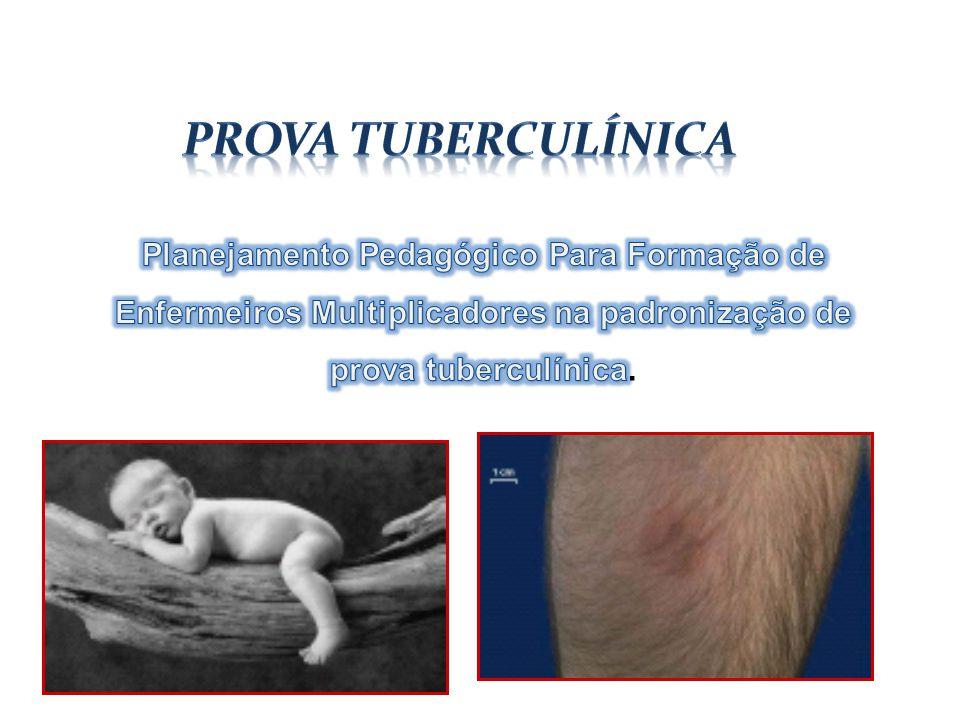 Prova Tuberculínica Planejamento Pedagógico Para Formação de Enfermeiros Multiplicadores na padronização de prova tuberculínica.