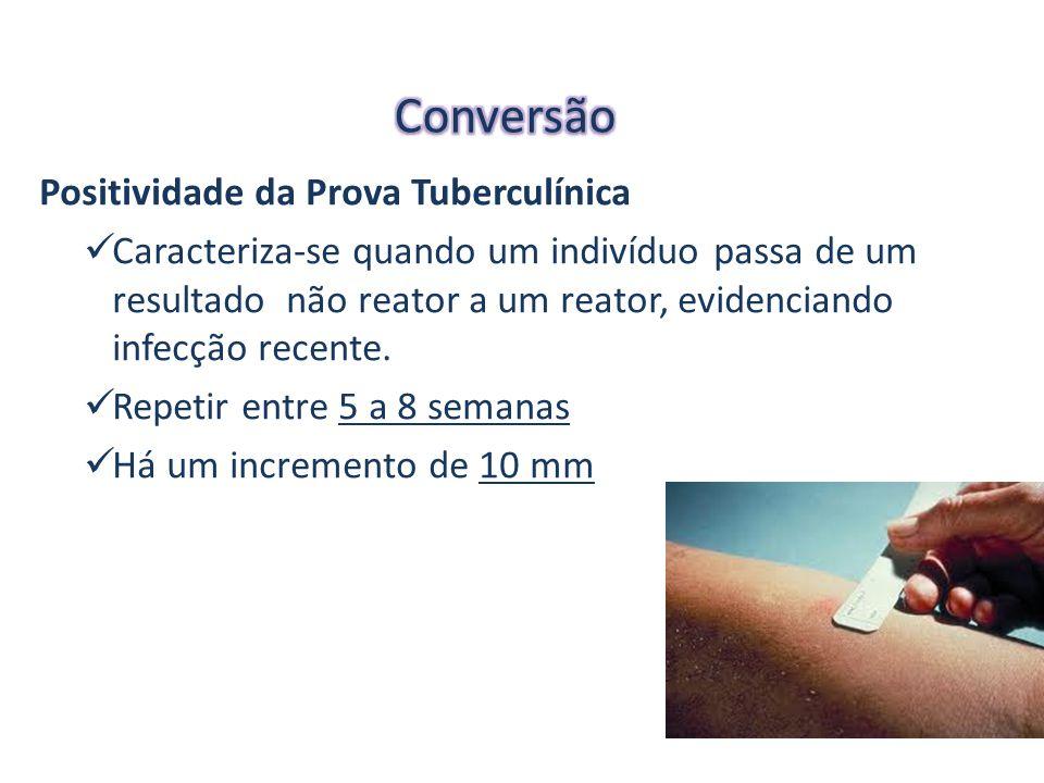 Conversão Positividade da Prova Tuberculínica