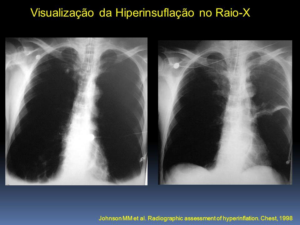 Visualização da Hiperinsuflação no Raio-X