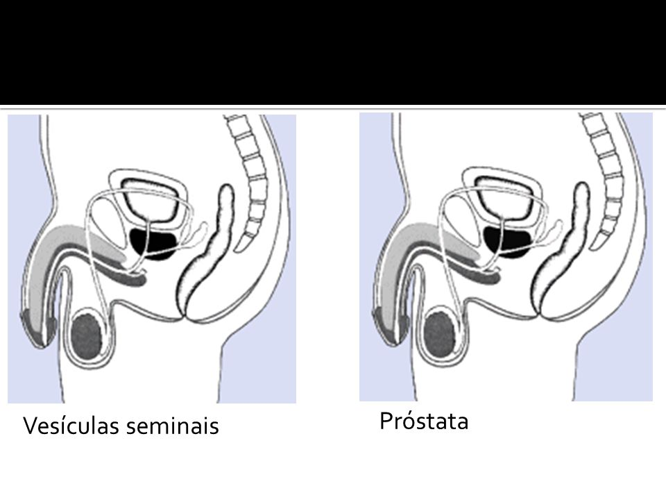 Próstata Vesículas seminais