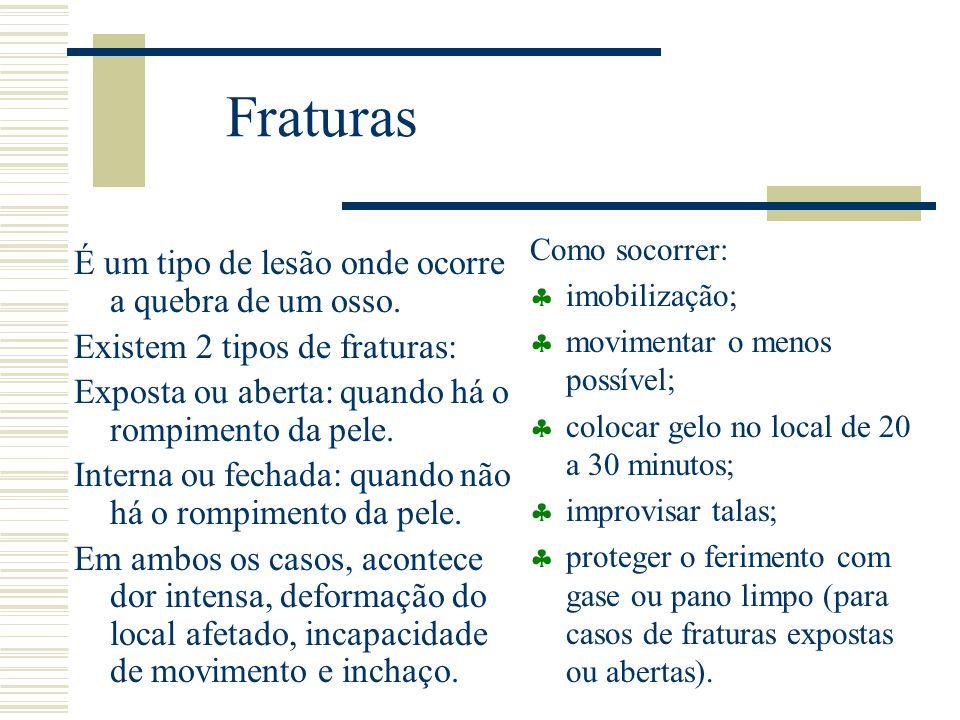 Fraturas É um tipo de lesão onde ocorre a quebra de um osso.