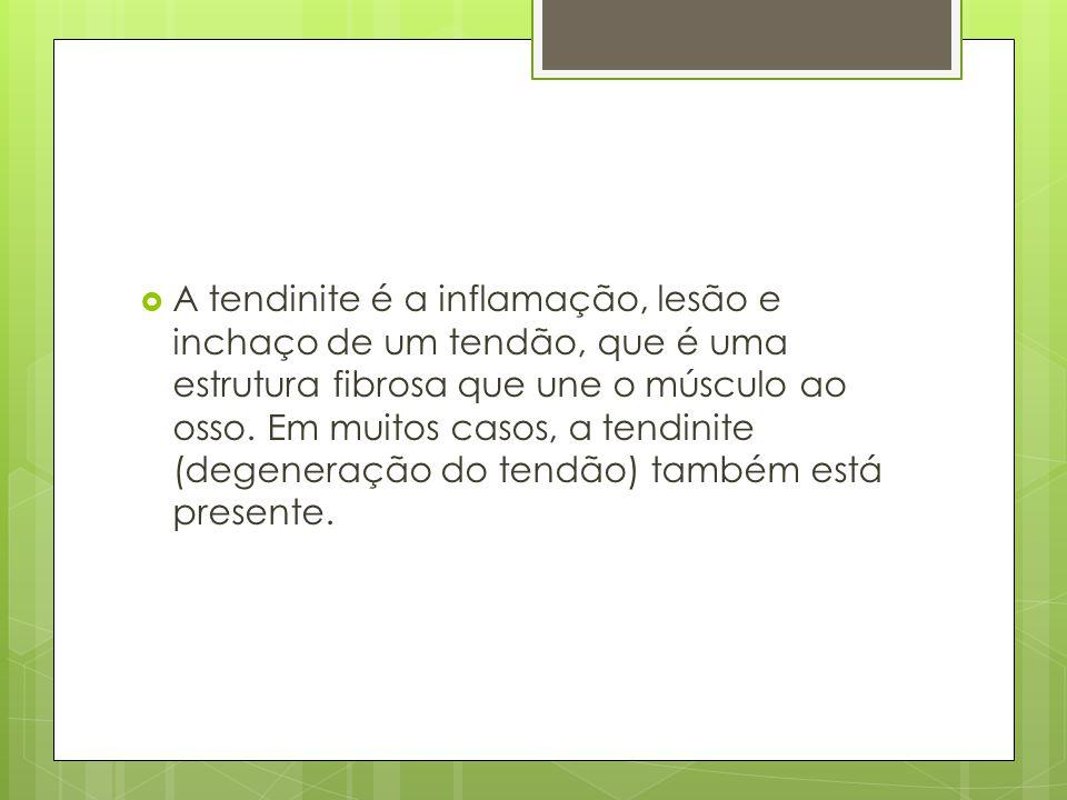 A tendinite é a inflamação, lesão e inchaço de um tendão, que é uma estrutura fibrosa que une o músculo ao osso.