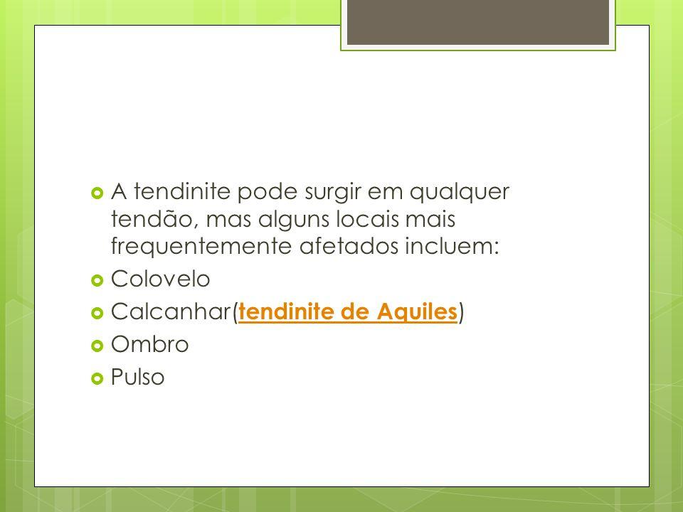A tendinite pode surgir em qualquer tendão, mas alguns locais mais frequentemente afetados incluem:
