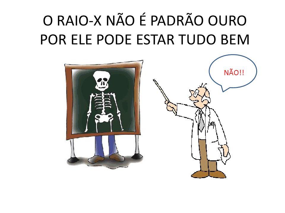 O RAIO-X NÃO É PADRÃO OURO POR ELE PODE ESTAR TUDO BEM
