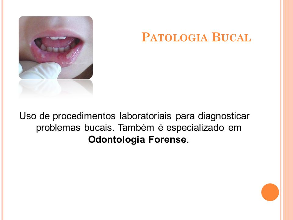 Patologia Bucal Uso de procedimentos laboratoriais para diagnosticar problemas bucais.