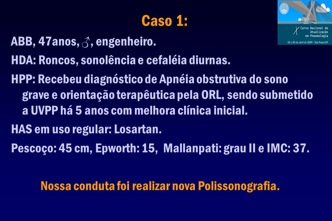 Caso 1: ABB, 47anos, ♂, engenheiro. HDA: Roncos, sonolência e cefaléia diurnas.