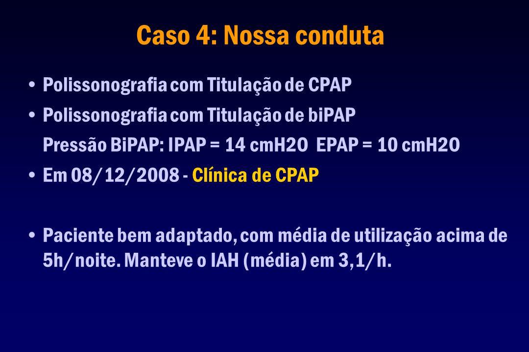 Caso 4: Nossa conduta Polissonografia com Titulação de CPAP
