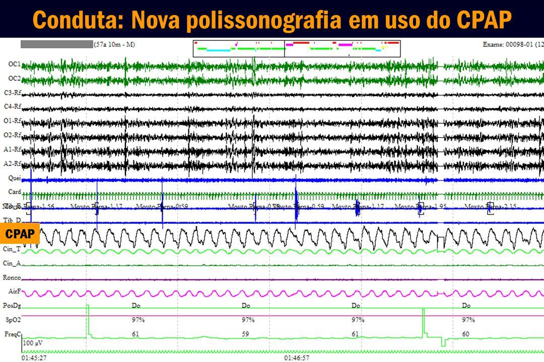 Conduta: Nova polissonografia em uso do CPAP