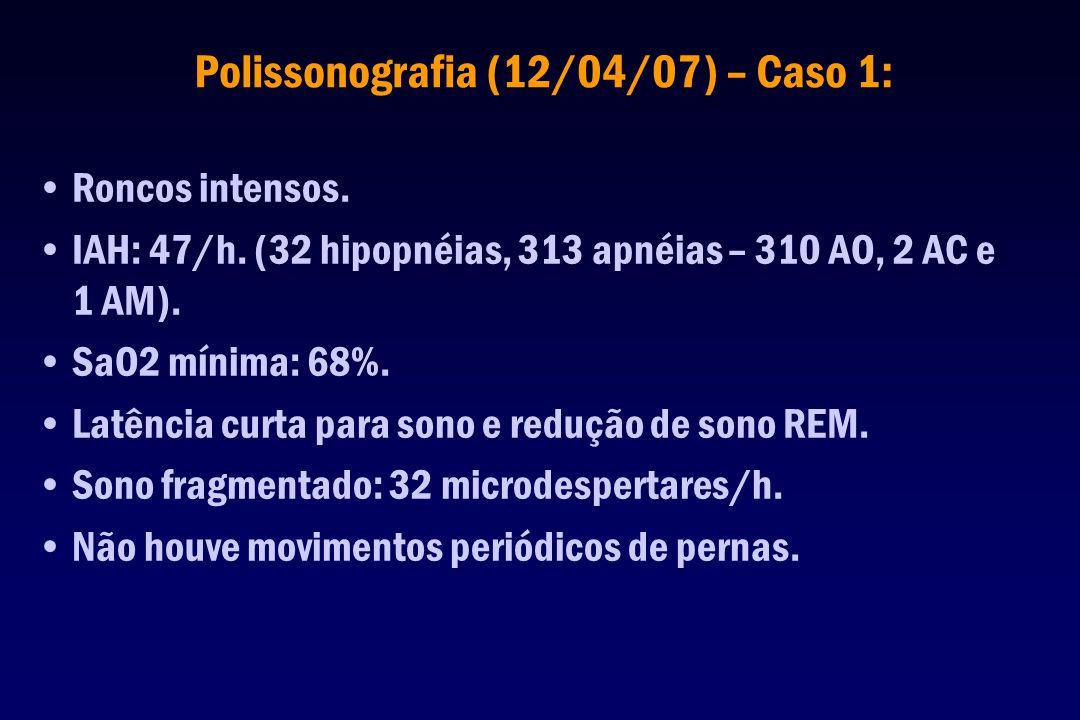 Polissonografia (12/04/07) – Caso 1:
