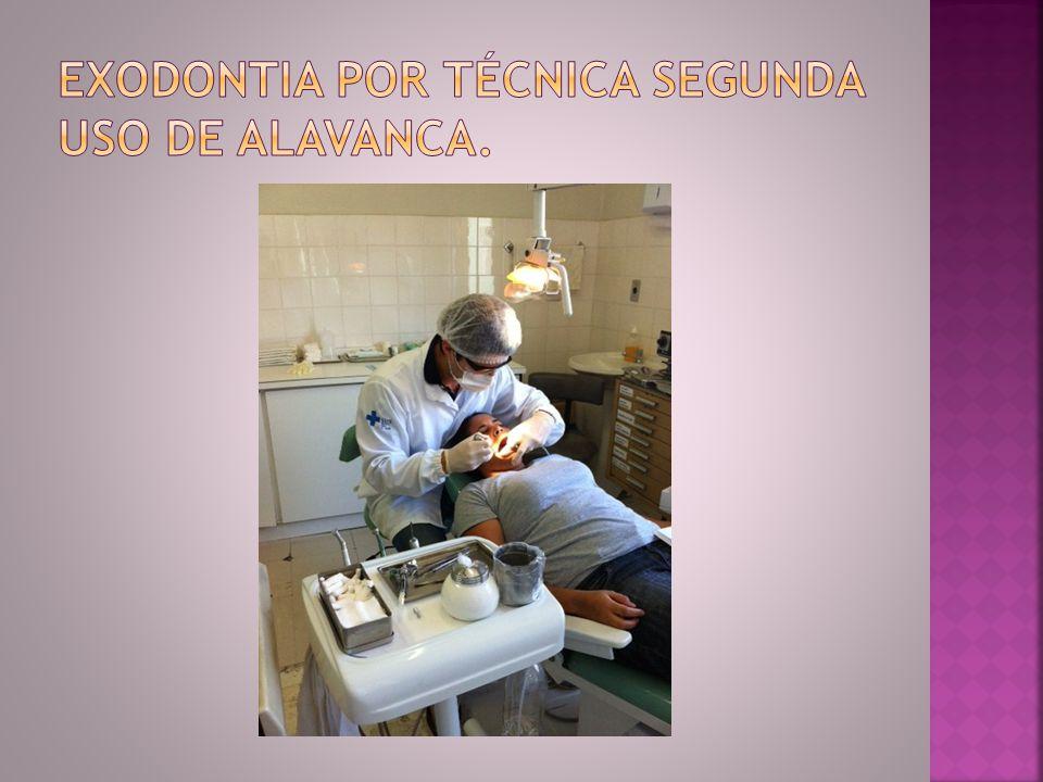 Exodontia por técnica segunda uso de alavanca.