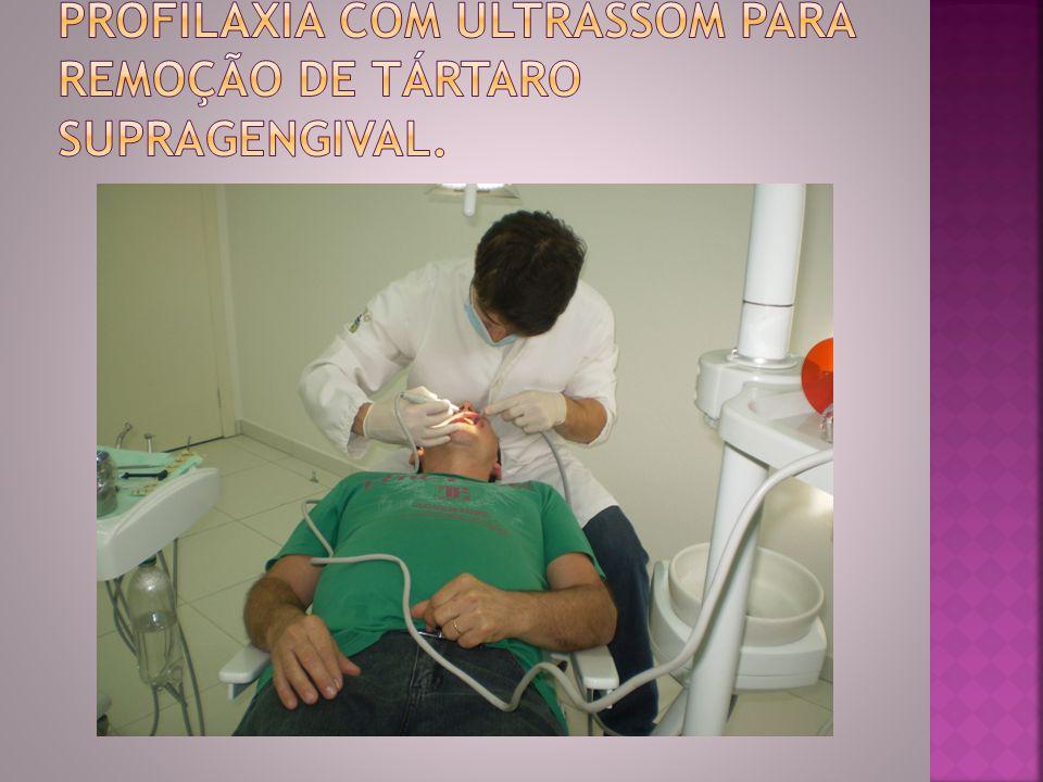 Profilaxia com ultrassom para remoção de tártaro supragengival.