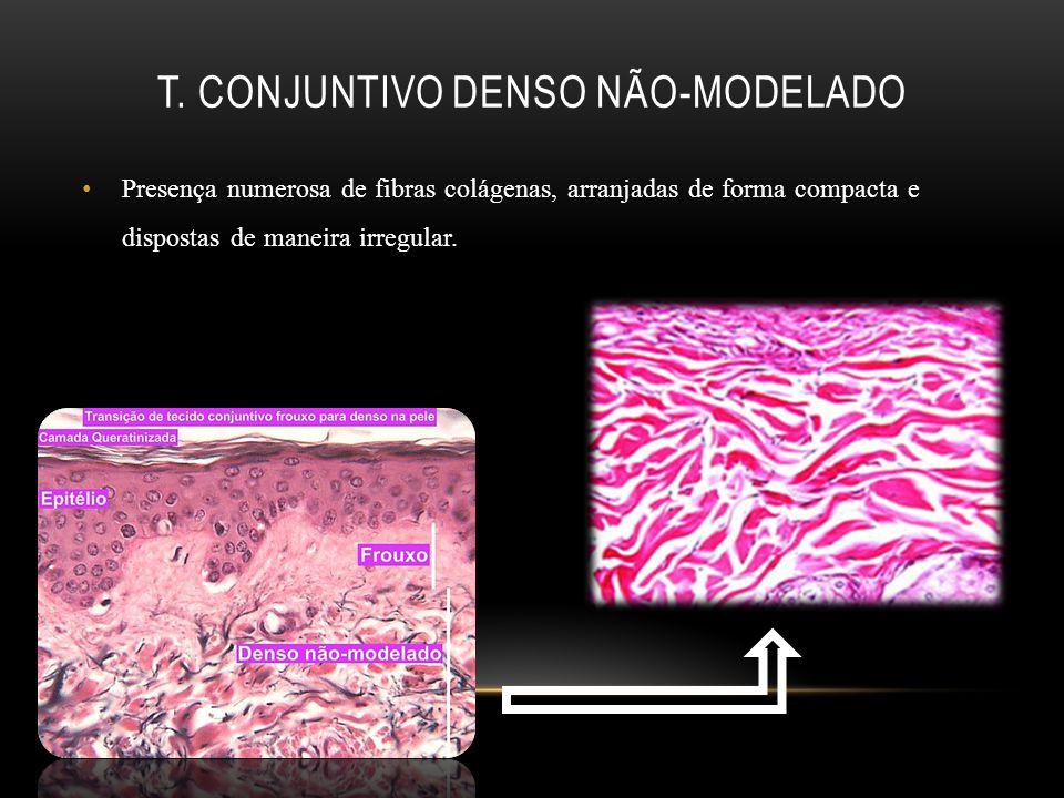T. Conjuntivo denso não-modelado