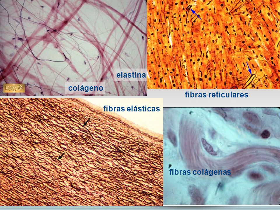 elastina colágeno fibras reticulares fibras elásticas fibras colágenas