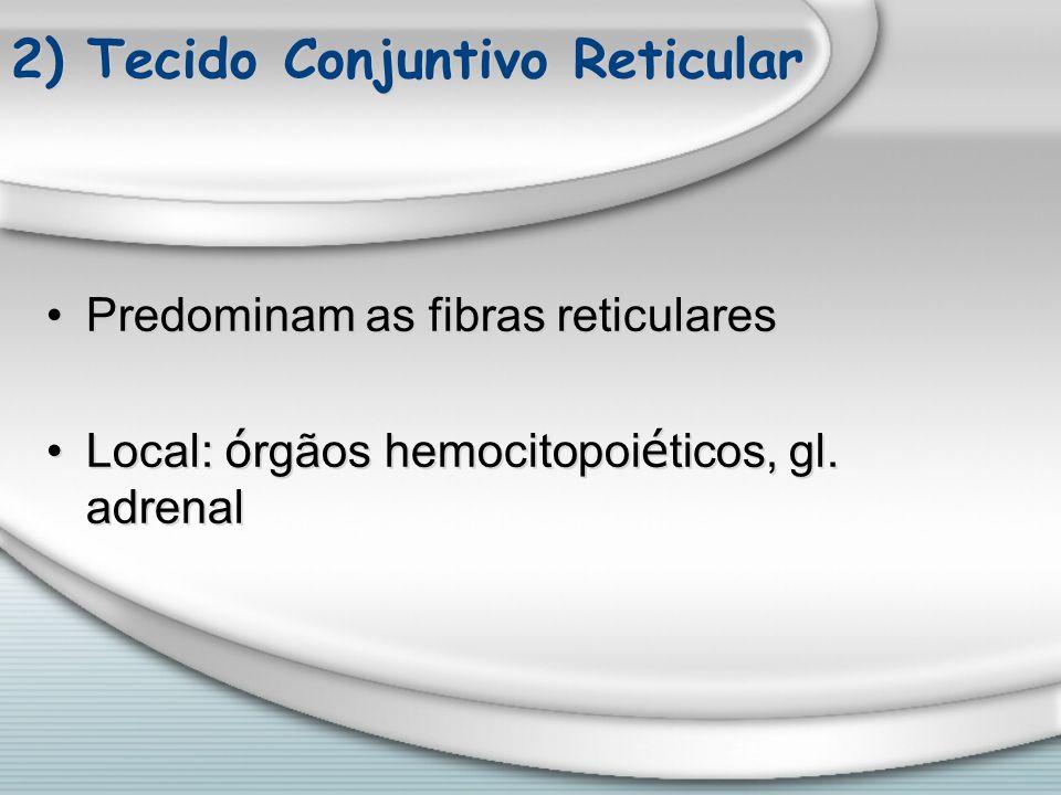 2) Tecido Conjuntivo Reticular