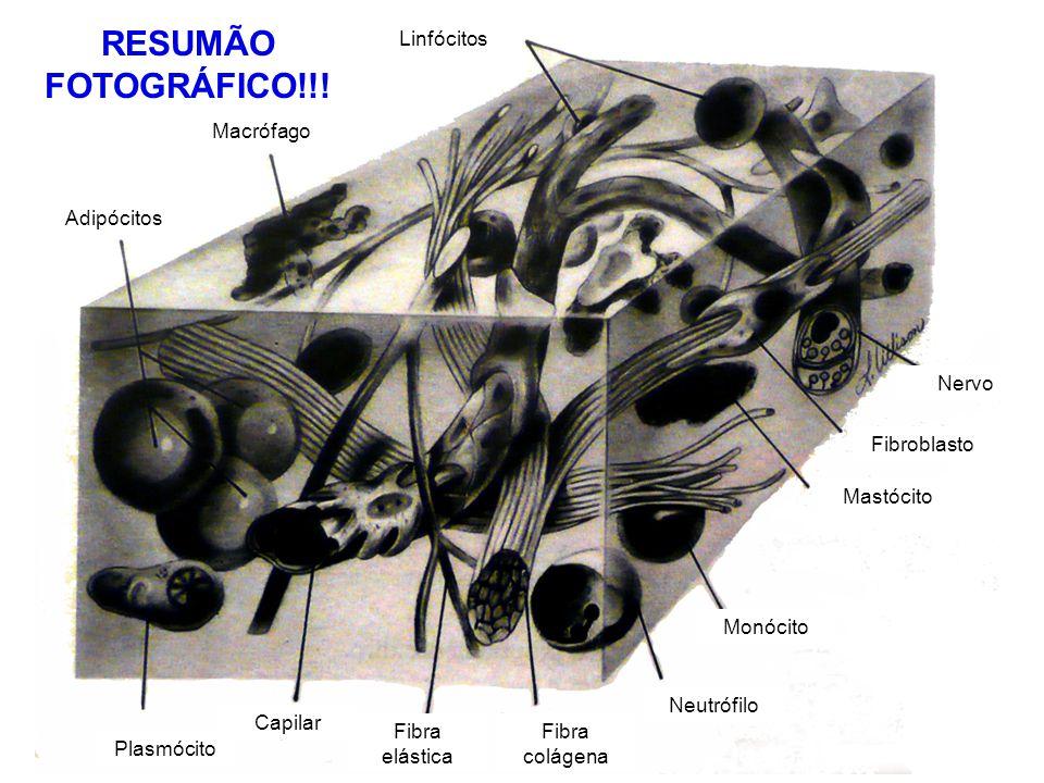 RESUMÃO FOTOGRÁFICO!!! Linfócitos Macrófago Adipócitos Plasmócito