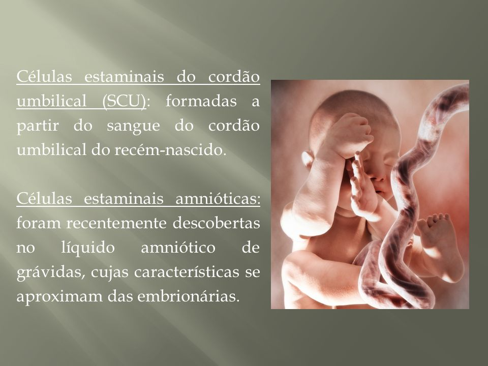 Células estaminais do cordão umbilical (SCU): formadas a partir do sangue do cordão umbilical do recém-nascido.