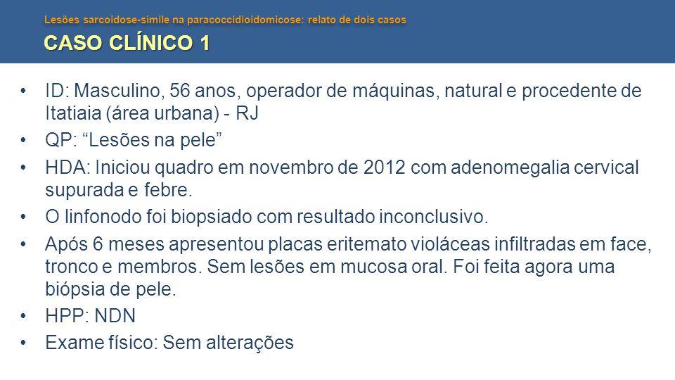 CASO CLÍNICO 1 ID: Masculino, 56 anos, operador de máquinas, natural e procedente de Itatiaia (área urbana) - RJ.